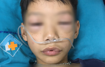 Bé 10 tuổi sốc phản vệ sau khi uống thuốc ho sốt