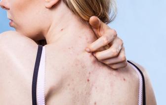 Lý do lưng nổi mụn và cách điều trị hiệu quả tại nhà
