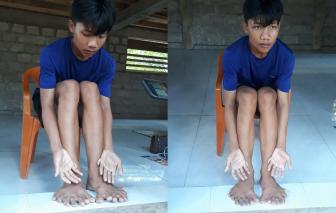 Kỳ lạ nam sinh người Vân Kiều ở Quảng Trị có đến 26 ngón tay, chân