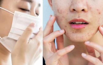 Đeo khẩu trang phòng dịch cách nào vẫn bảo vệ được làn da?