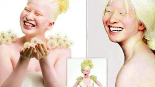 Thiếu niên bạch tạng làm chao đảo giới người mẫu
