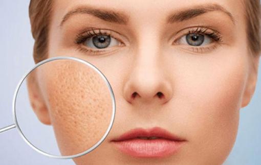 Những sai lầm dưỡng da khiến lỗ chân lông to hơn