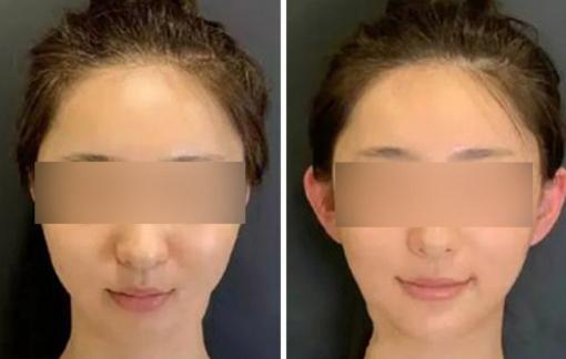 Mốt phẫu thuật thẩm mỹ 'tai yêu tinh' bùng nổ ở Trung Quốc