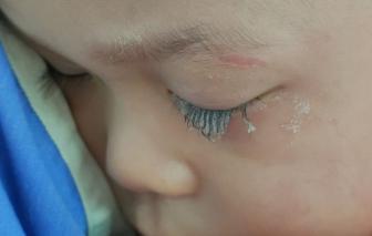 Cặp lông mi bé trai 3 tuổi đông cứng do bị keo 502 bắn vào mắt