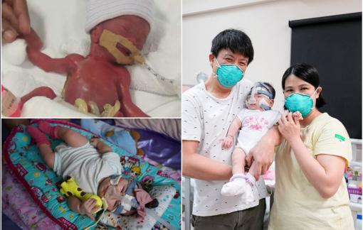 Em bé sinh non nhỏ nhất thế giới được xuất viện