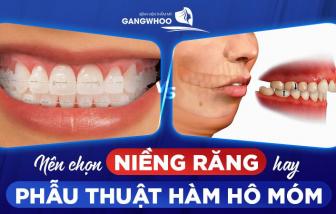 BVTM Gangwhoo: Nên chọn niềng răng hay phẫu thuật hàm hô?