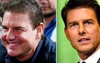 Tom Cruise mặt tròn vo, bị nghi tiêm chất làm đầy