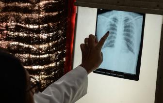 Sau nhiều năm, lần đầu tiên số người chết vì bệnh lao tăng do COVID-19