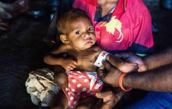 Tình trạng trẻ em thấp còi gia tăng tại Thái Bình Dương